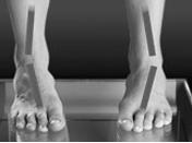 leg-excess-front